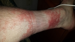 My lovely heat and/or wool allergy rash